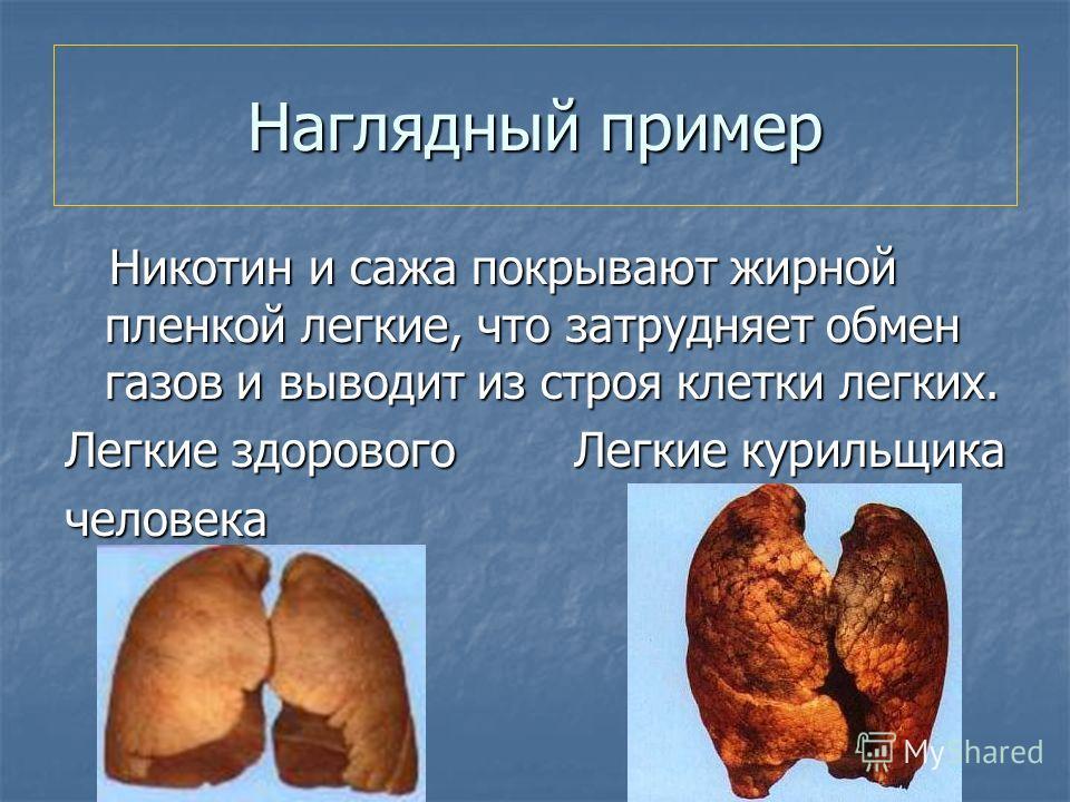 Наглядный пример Никотин и сажа покрывают жирной пленкой легкие, что затрудняет обмен газов и выводит из строя клетки легких. Никотин и сажа покрывают жирной пленкой легкие, что затрудняет обмен газов и выводит из строя клетки легких. Легкие здоровог