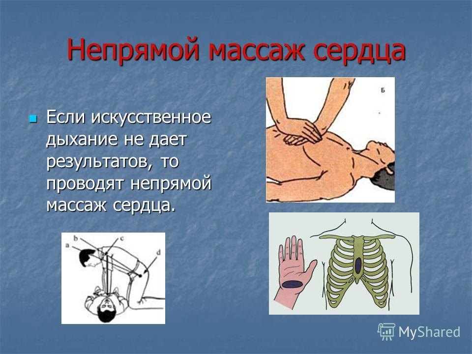 Непрямой массаж сердца Если искусственное дыхание не дает результатов, то проводят непрямой массаж сердца. Если искусственное дыхание не дает результатов, то проводят непрямой массаж сердца.