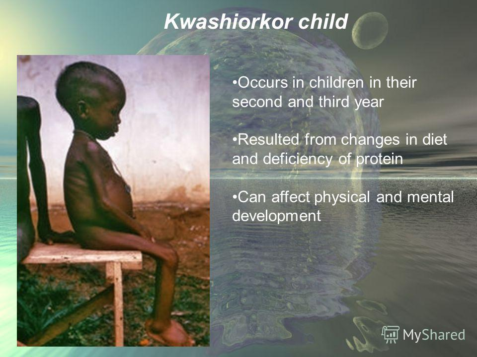 Kwashiorkor child Occurs in children in their second and third year Resulted from changes in diet and deficiency of protein Can affect physical and mental development
