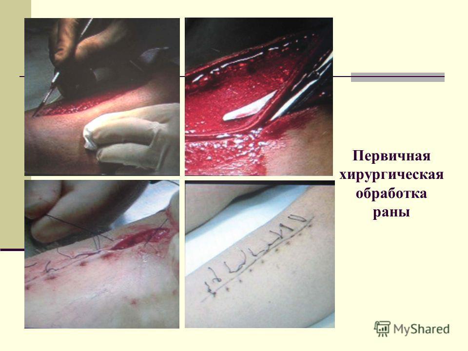 Первичная хирургическая обработка раны