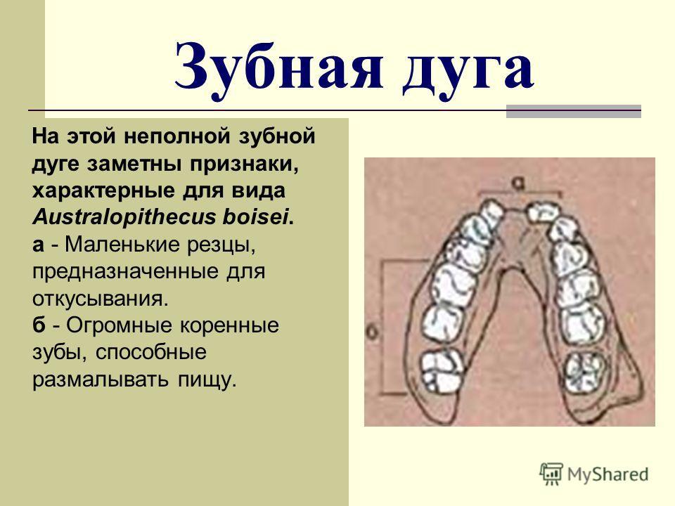 Зубная дуга На этой неполной зубной дуге заметны признаки, характерные для вида Australopithecus boisei. а - Маленькие резцы, предназначенные для откусывания. б - Огромные коренные зубы, способные размалывать пищу.