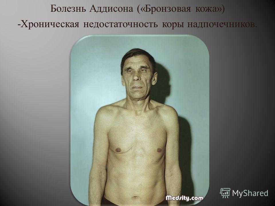 Болезнь Аддисона (« Бронзовая кожа ») - Хроническая недостаточность коры надпочечников.