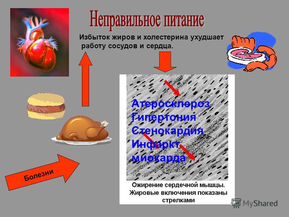 Избыток жиров и холестерина ухудшает работу сосудов и сердца. Атеросклероз Гипертония Стенокардия Инфаркт миокарда Болезни