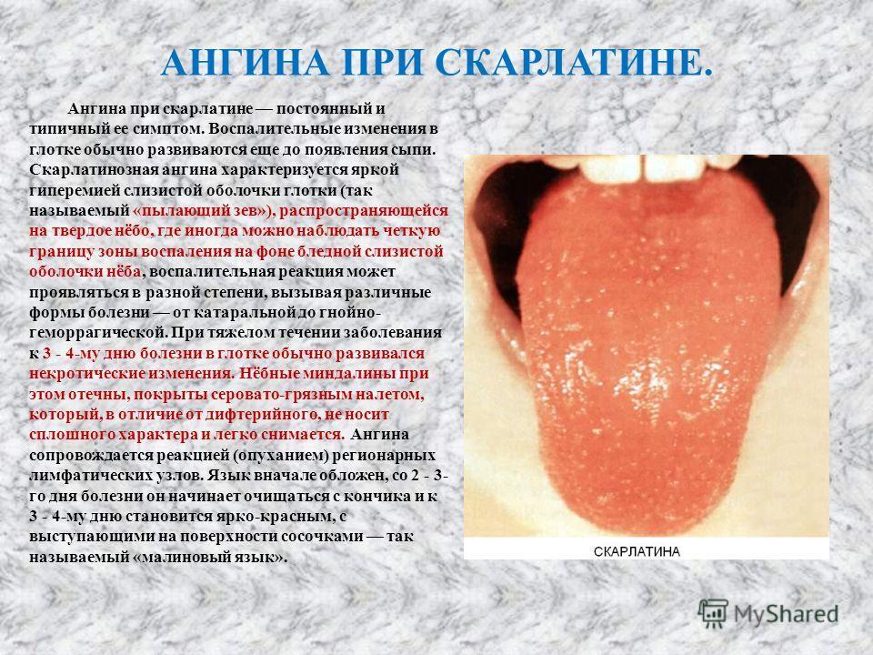 АНГИНА ПРИ СКАРЛАТИНЕ. Ангина при скарлатине постоянный и типичный ее симптом. Воспалительные изменения в глотке обычно развиваются еще до появления сыпи. Скарлатинозная ангина характеризуется яркой гиперемией слизистой оболочки глотки (так называемы