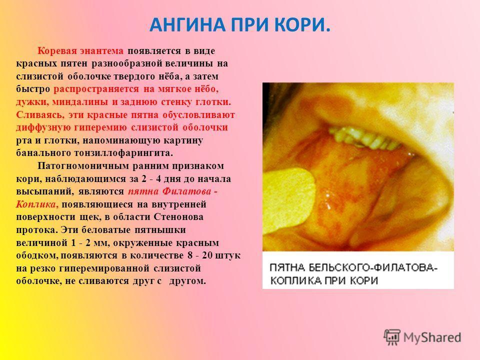 АНГИНА ПРИ КОРИ. Коревая энантема появляется в виде красных пятен разнообразной величины на слизистой оболочке твердого нёба, а затем быстро распространяется на мягкое нёбо, дужки, миндалины и заднюю стенку глотки. Сливаясь, эти красные пятна обуслов