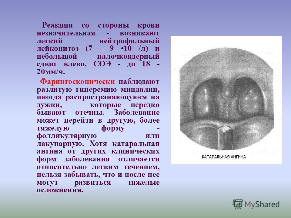 Реакция со стороны крови незначительная - возникают легкий нейтрофильный лейкоцитоз (7 – 9 10 /л) и небольшой палочкоядерный сдвиг влево, СОЭ - до 18 - 20мм/ч. Фарингоскопически наблюдают разлитую гиперемию миндалин, иногда распространяющуюся на дужк