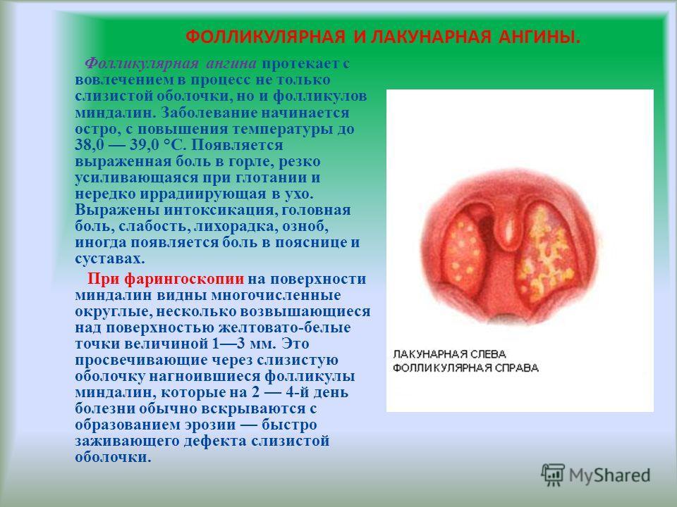 ФОЛЛИКУЛЯРНАЯ И ЛАКУНАРНАЯ АНГИНЫ. Фолликулярная ангина протекает с вовлечением в процесс не только слизистой оболочки, но и фолликулов миндалин. Заболевание начинается остро, с повышения температуры до 38,0 39,0 °С. Появляется выраженная боль в горл