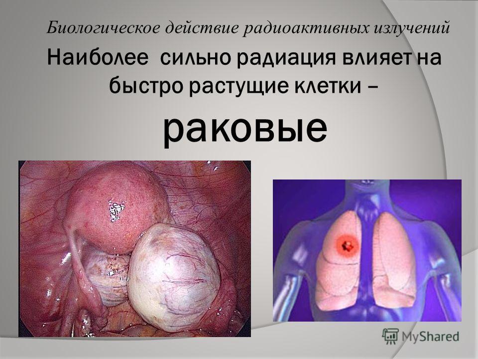 Рак и наследственные болезни расцениваются как хронические последствия действия излучений Биологическое действие радиоактивных излучений