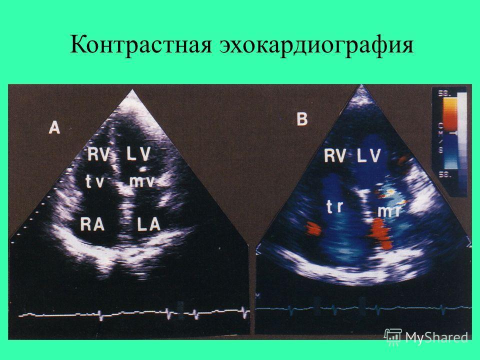 Контрастная эхокардиография