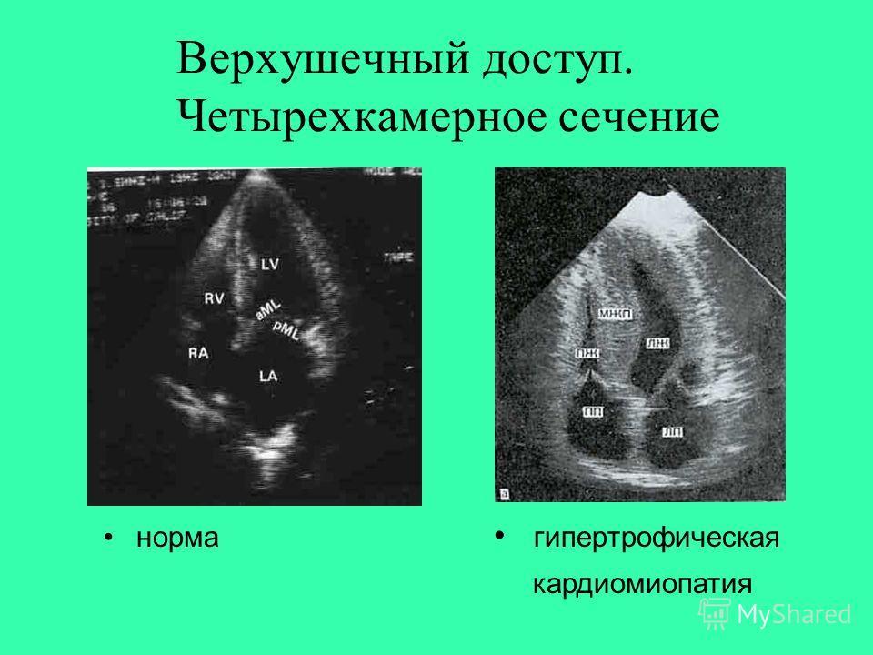 Верхушечный доступ. Четырехкамерное сечение норма гипертрофическая кардиомиопатия