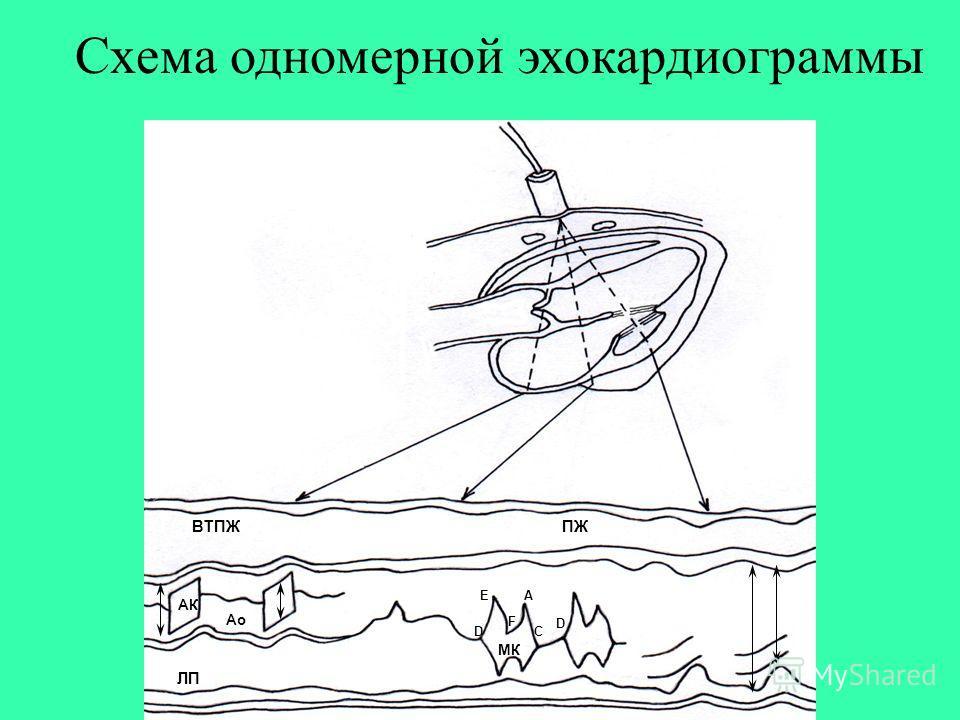 Схема одномерной эхокардиограммы АК Ао ЛП ПЖВТПЖ МК D D C A F E