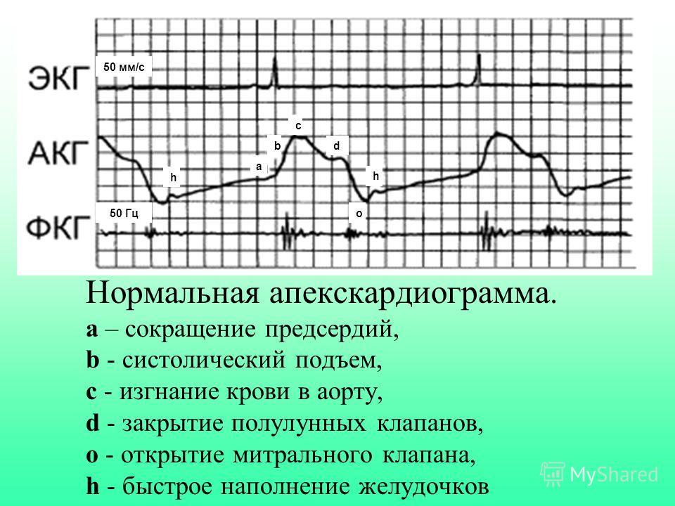 Нормальная апекскардиограмма. а – сокращение предсердий, b - cистолический подъем, с - изгнание крови в аорту, d - закрытие полулунных клапанов, о - открытие митрального клапана, h - быстрое наполнение желудочков a b c d h o50 Гц 50 мм/с h