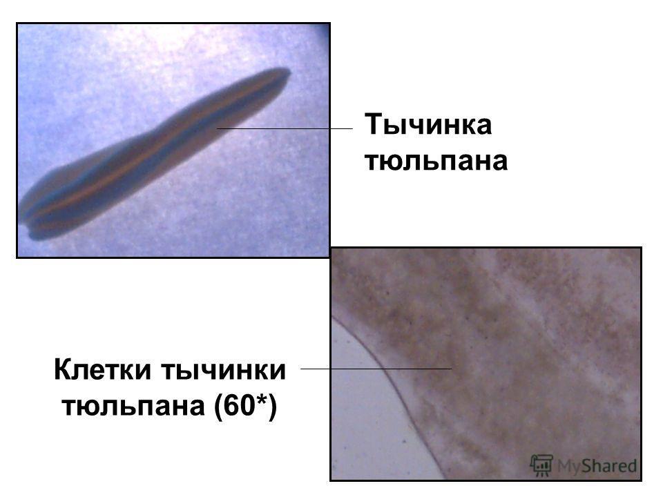 Рассмотрим получше… Тычинка тюльпана Клетки тычинки тюльпана (60*)