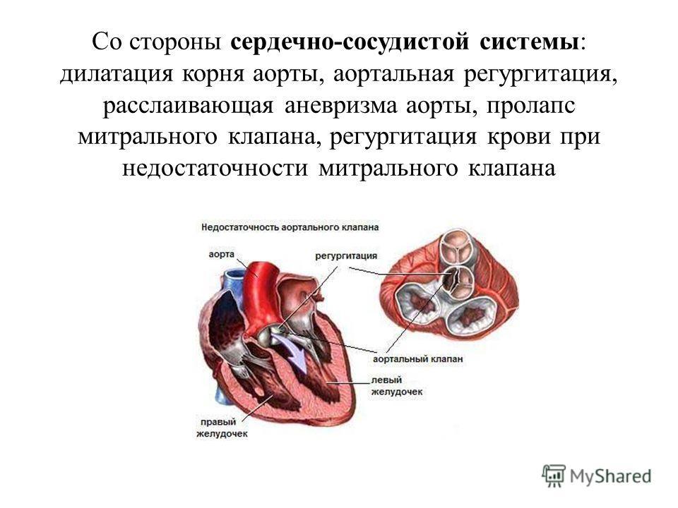 Со стороны сердечно-сосудистой системы: дилатация корня аорты, аортальная регургитация, расслаивающая аневризма аорты, пролапс митрального клапана, регургитация крови при недостаточности митрального клапана
