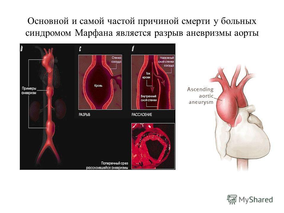 Основной и самой частой причиной смерти у больных синдромом Марфана является разрыв аневризмы аорты