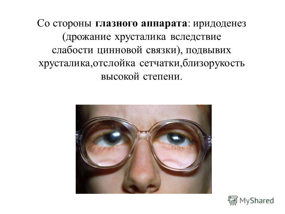 Со стороны глазного аппарата: иридоденез (дрожание хрусталика вследствие слабости цинновой связки), подвывих хрусталика,отслойка сетчатки,близорукость высокой степени.