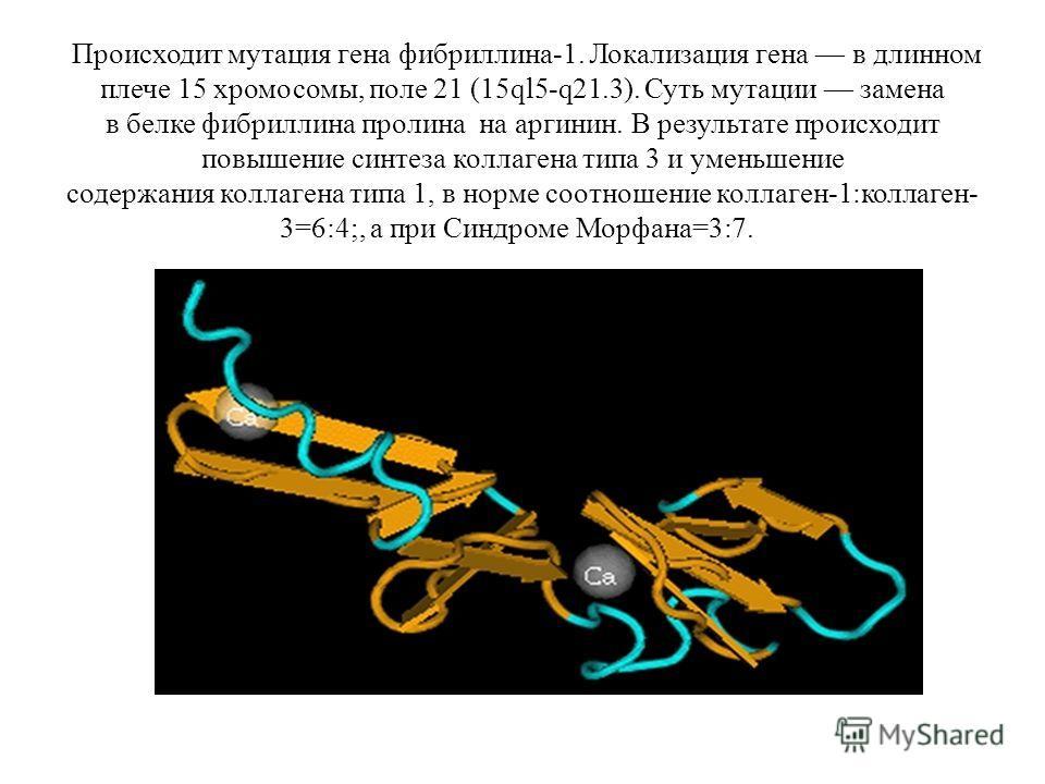 Происходит мутация гена фибриллина-1. Локализация гена в длинном плече 15 хромосомы, поле 21 (15ql5-q21.3). Суть мутации замена в белке фибриллина пролина на аргинин. В результате происходит повышение синтеза коллагена типа 3 и уменьшение содержания