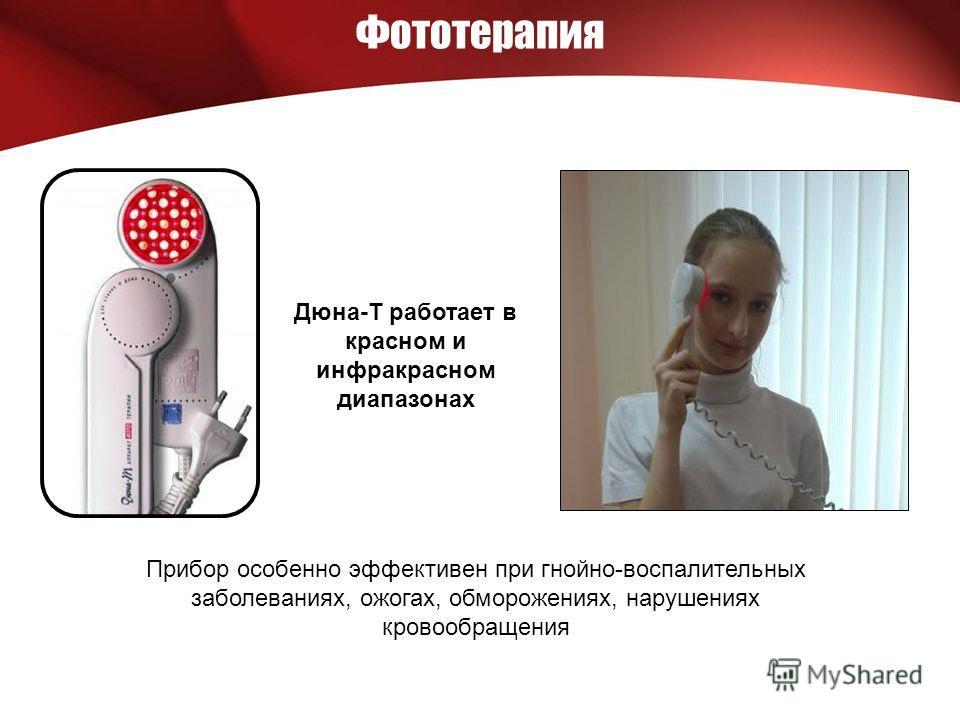 Фототерапия Дюна-Т работает в красном и инфракрасном диапазонах Прибор особенно эффективен при гнойно-воспалительных заболеваниях, ожогах, обморожениях, нарушениях кровообращения