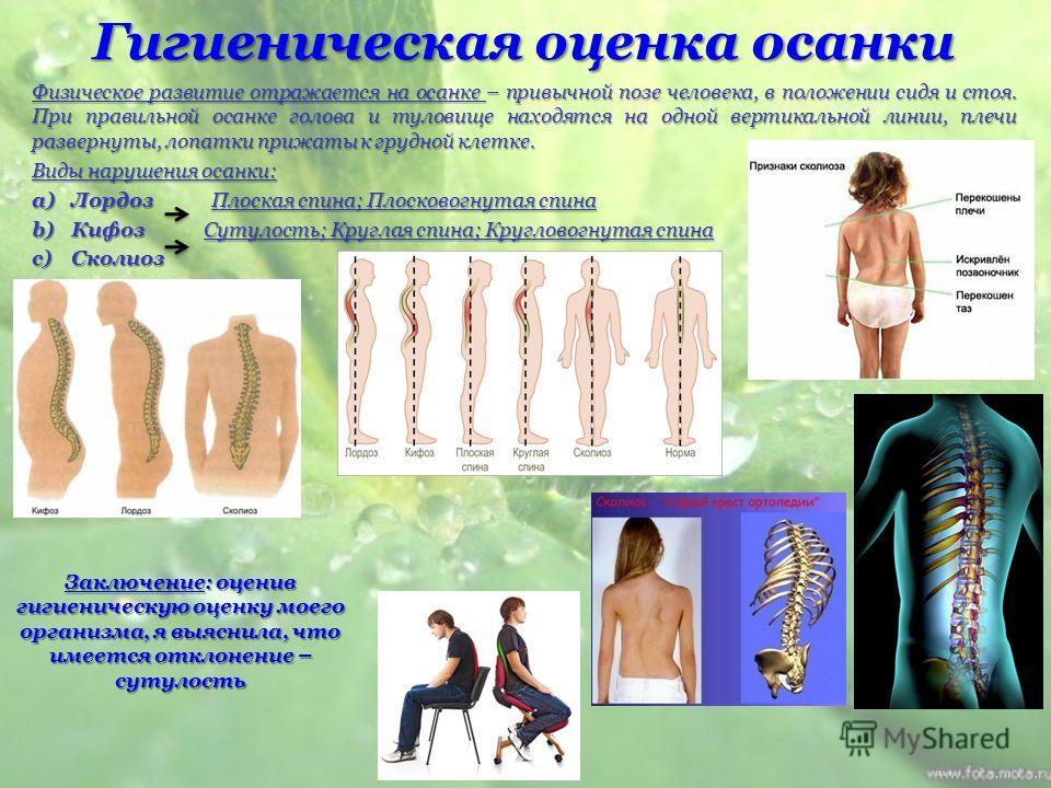 Гигиеническая оценка осанки Физическое развитие отражается на осанке – привычной позе человека, в положении сидя и стоя. При правильной осанке голова и туловище находятся на одной вертикальной линии, плечи развернуты, лопатки прижаты к грудной клетке