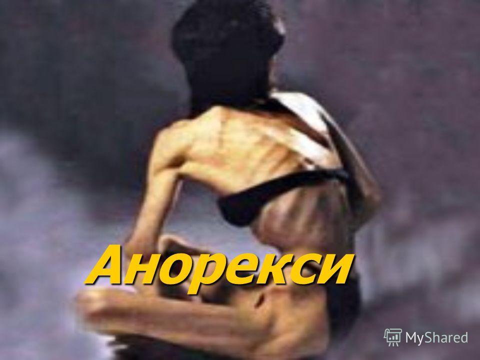 Анорекси