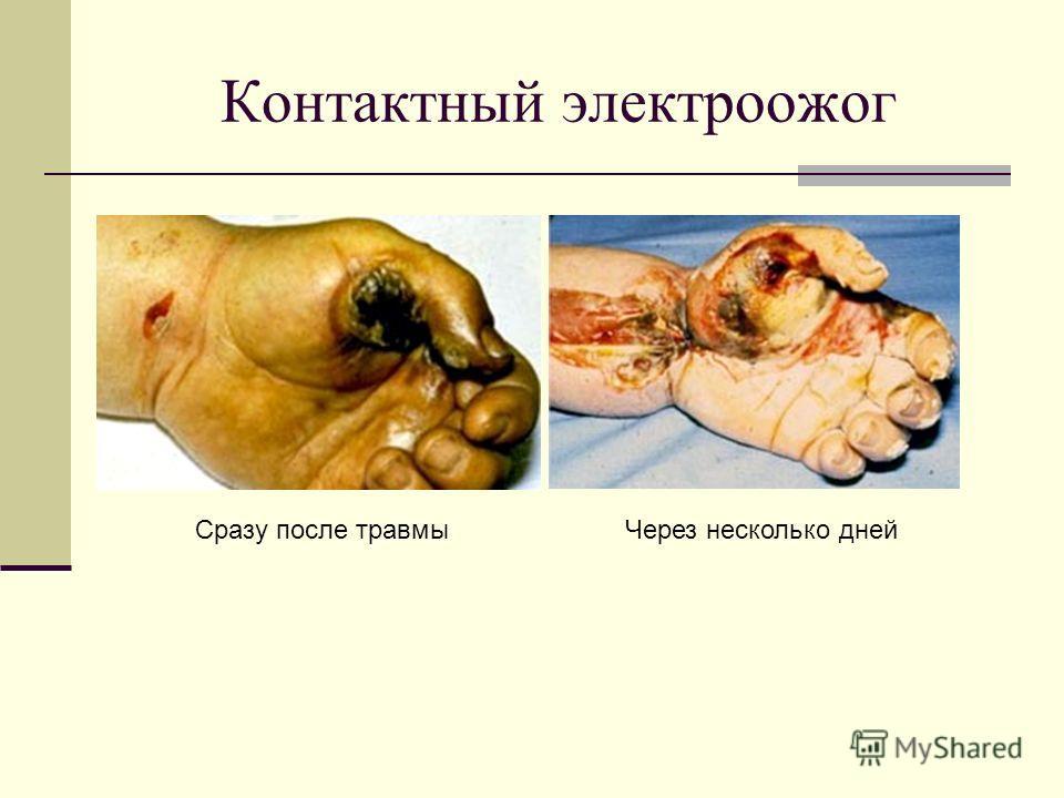 Симптомы некроза на коже
