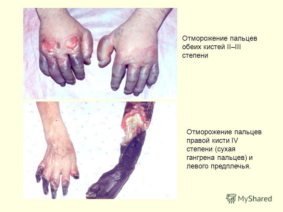 Отморожение пальцев обеих кистей II–III степени Отморожение пальцев правой кисти IV степени (сухая гангрена пальцев) и левого предплечья.