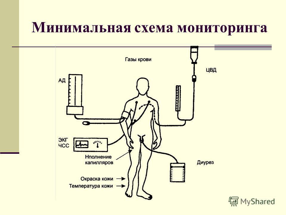 Минимальная схема мониторинга