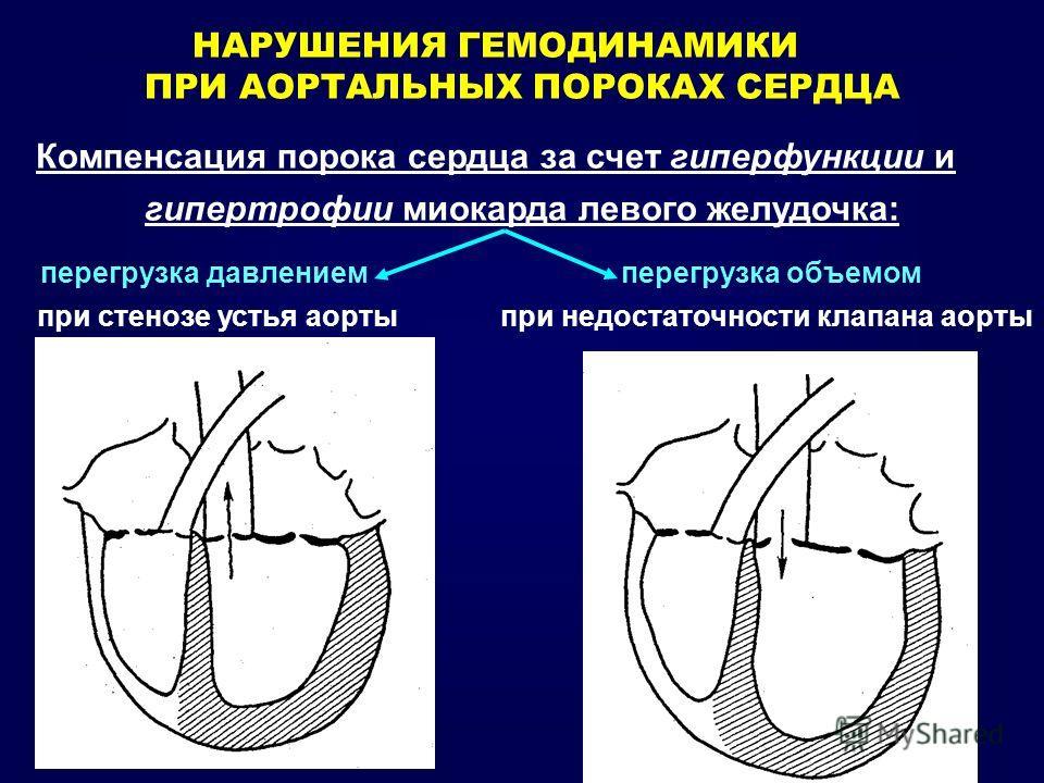 НАРУШЕНИЯ ГЕМОДИНАМИКИ ПРИ АОРТАЛЬНЫХ ПОРОКАХ СЕРДЦА Компенсация порока сердца за счет гиперфункции и гипертрофии миокарда левого желудочка: перегрузка давлением перегрузка объемом при стенозе устья аорты при недостаточности клапана аорты