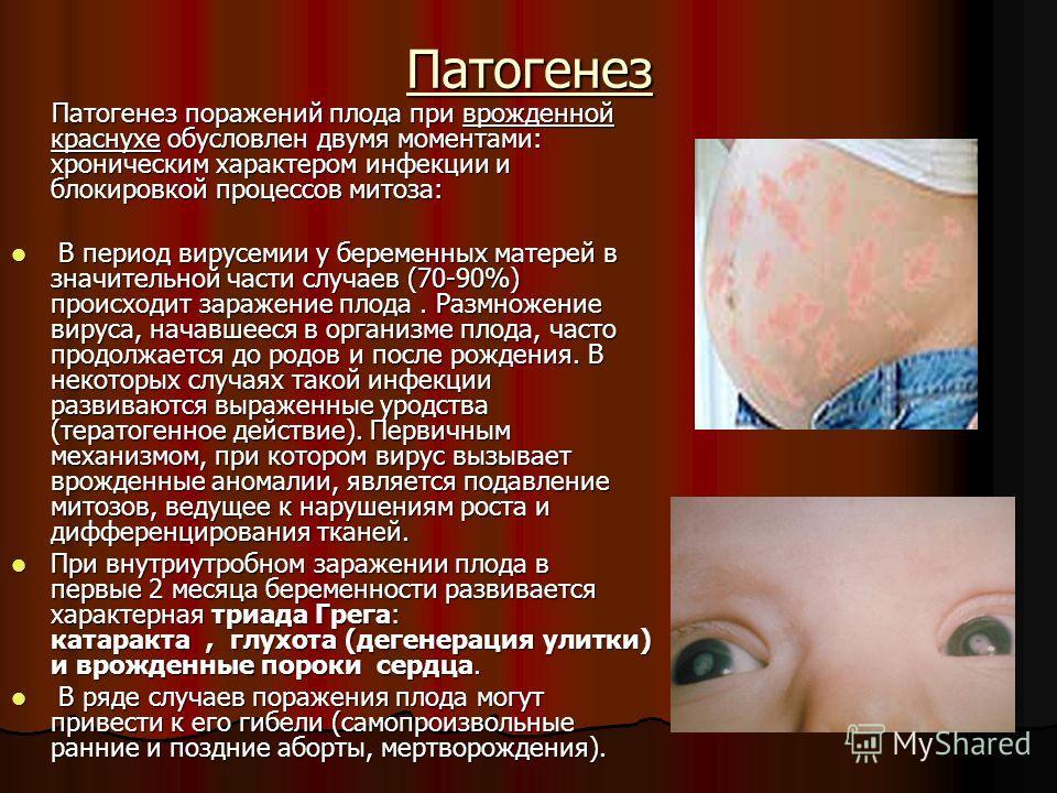 Патогенез Патогенез поражений плода при врожденной краснухе обусловлен двумя моментами: хроническим характером инфекции и блокировкой процессов митоза: Патогенез поражений плода при врожденной краснухе обусловлен двумя моментами: хроническим характер