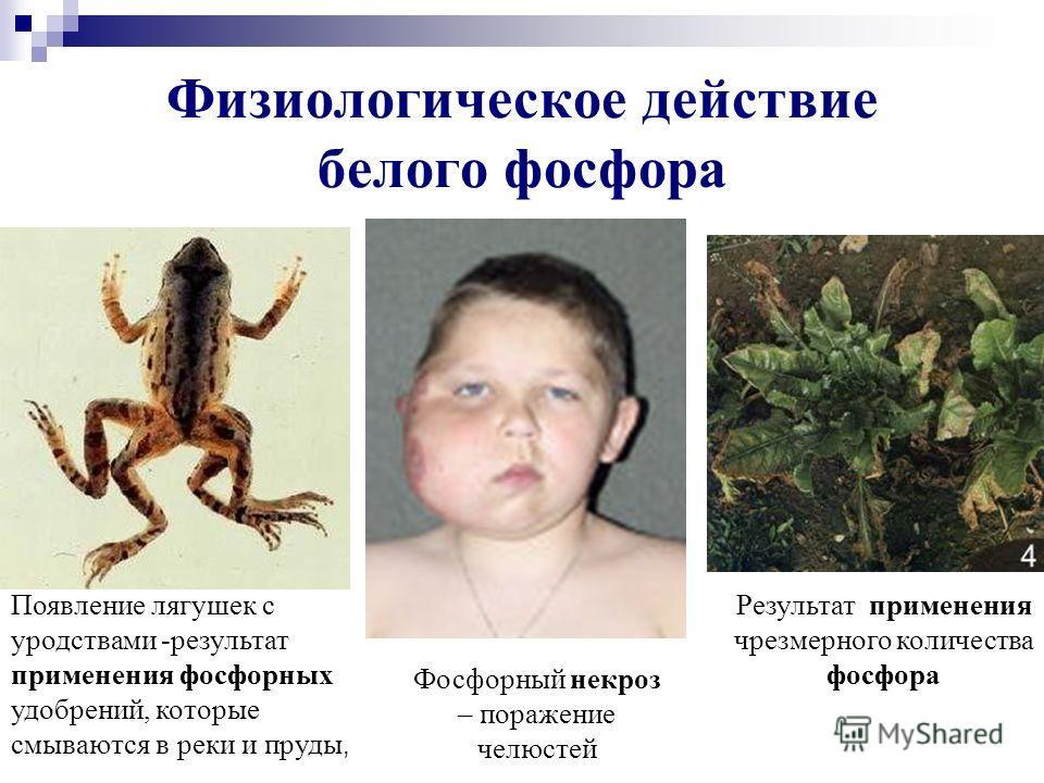 Физиологическое действие белого фосфора Результат применения чрезмерного количества фосфора Появление лягушек с уродствами -результат применения фосфорных удобрений, которые смываются в реки и пруды, Фосфорный некроз – поражение челюстей