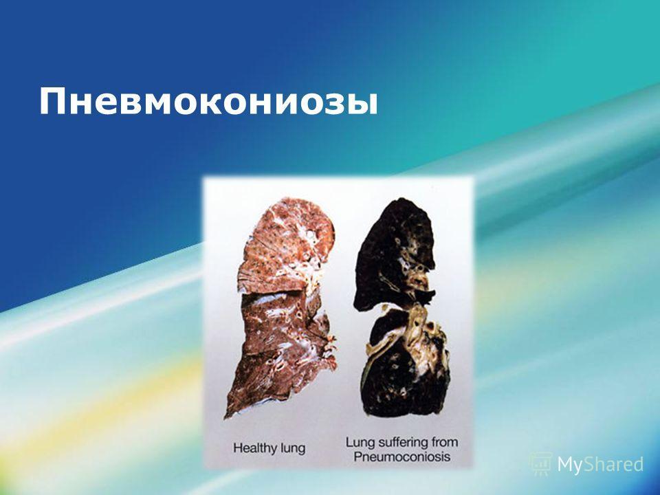 LOGO Пневмокониозы
