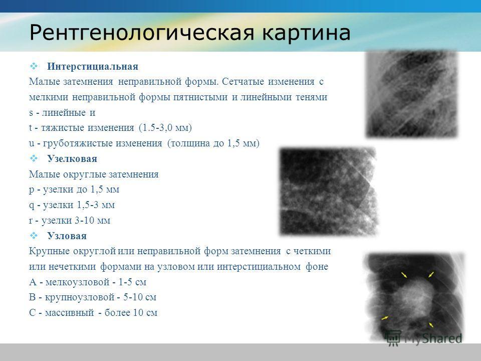 Рентгенологическая картина Интерстициальная Малые затемнения неправильной формы. Сетчатые изменения с мелкими неправильной формы пятнистыми и линейными тенями s - линейные и t - тяжистые изменения (1.5-3,0 мм) u - груботяжистые изменения (толщина до