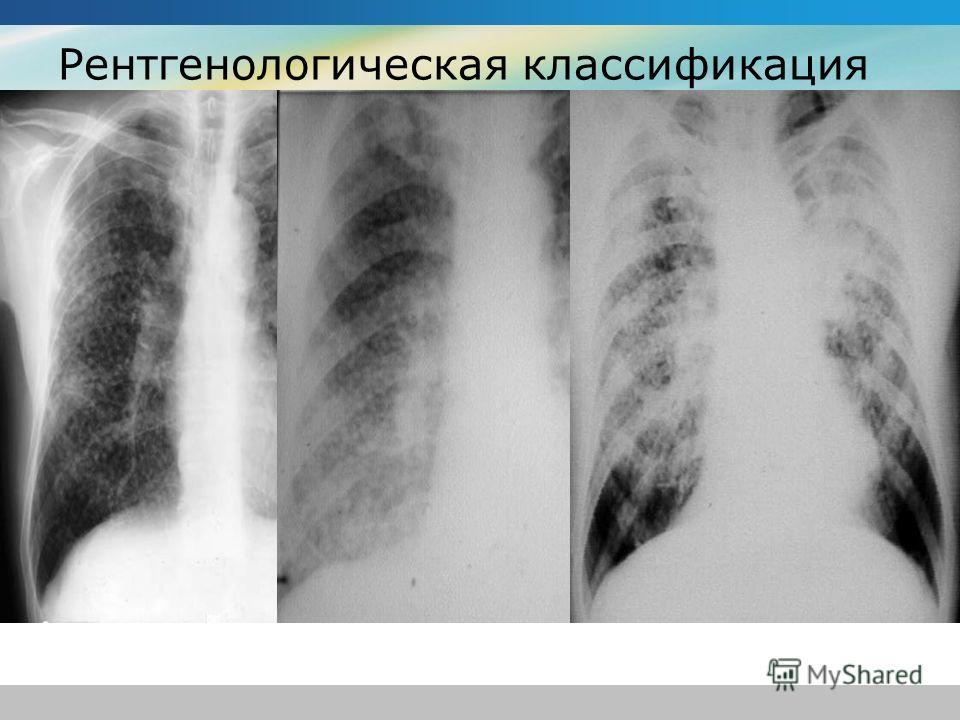 Рентгенологическая классификация I стадия-интерстициальные изменения (ячеистый и линейный легочный рисунок), или мелкоузелковый диффузный фиброз; II стадия-крупноузелковый (узелки диаметром 1-4 мм) пневмофиброз типа снежной бури; III стадия-распростр