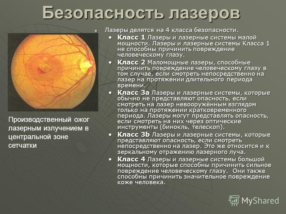 Применение лазера 1. Медицина 2. Лазерные указки, Голография, Лазерные дисплеи 3. Военная техника 4. Системы навигации (Лазерный гироскоп) 5. Дальномеры