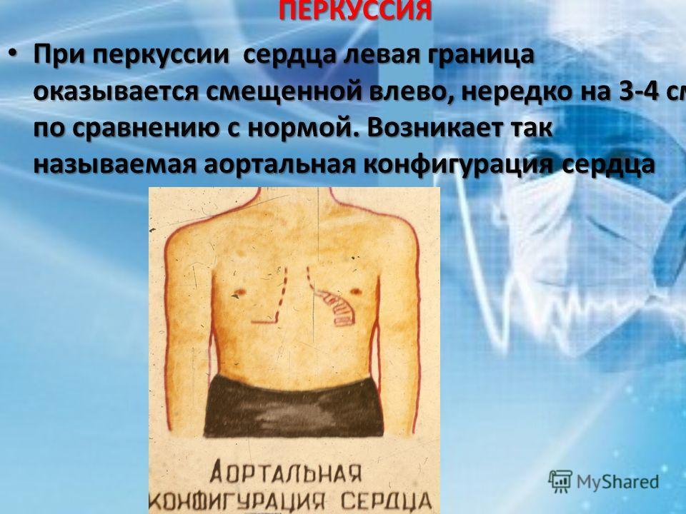 ПЕРКУССИЯ При перкуссии сердца левая граница оказывается смещенной влево, нередко на 3-4 см по сравнению с нормой. Возникает так называемая аортальная конфигурация сердца При перкуссии сердца левая граница оказывается смещенной влево, нередко на 3-4