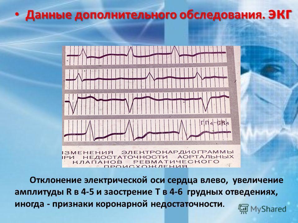 Данные дополнительного обследования. экг Данные дополнительного обследования. экг Отклонение электрической оси сердца влево, увеличение амплитуды R в 4-5 и заострение Т в 4-6 грудных отведениях, иногда - признаки коронарной недостаточности.