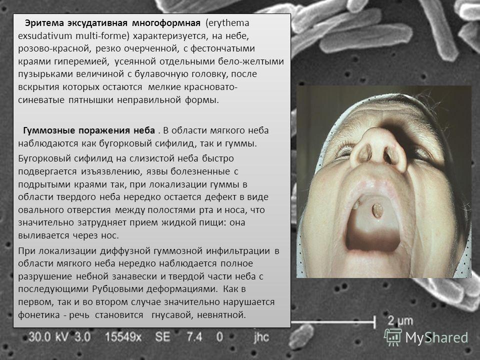 Эритема эксудативная многоформная (erythema exsudativum multi-forme) характеризуется, на небе, розово-красной, резко очерченной, с фестончатыми краями гиперемией, усеянной отдельными бело-желтыми пузырьками величиной с булавочную головку, после вскры