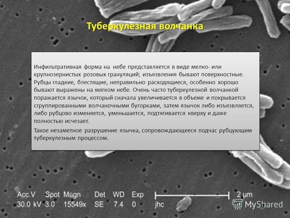 Туберкулезная волчанка Инфильтративная форма на небе представляется в виде мелко- или крупнозернистых розовых грануляций; изъязвления бывают поверхностные. Рубцы гладкие, блестящие, неправильно расходящиеся, особенно хорошо бывают выражены на мягком
