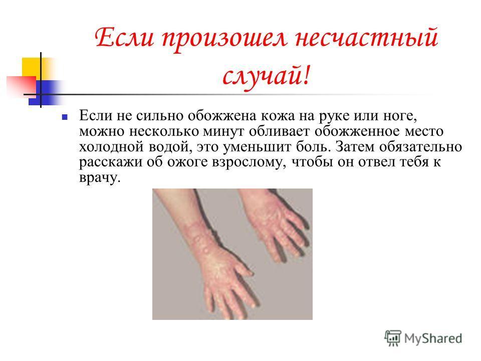 Если произошел несчастный случай! Если не сильно обожжена кожа на руке или ноге, можно несколько минут обливает обожженное место холодной водой, это уменьшит боль. Затем обязательно расскажи об ожоге взрослому, чтобы он отвел тебя к врачу.
