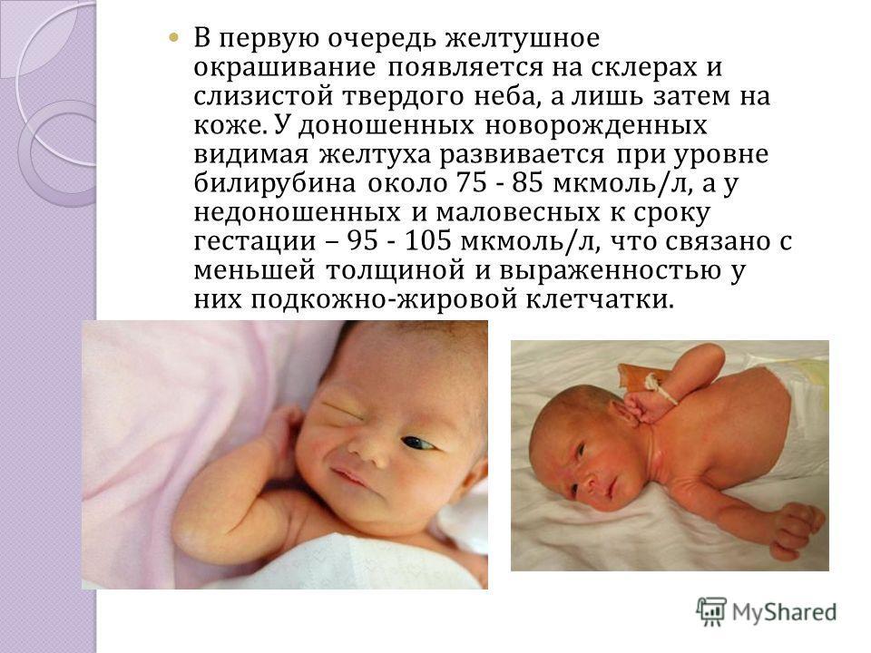 В первую очередь желтушное окрашивание появляется на склерах и слизистой твердого неба, а лишь затем на коже. У доношенных новорожденных видимая желтуха развивается при уровне билирубина около 75 - 85 мкмоль/л, а у недоношенных и маловесных к сроку г