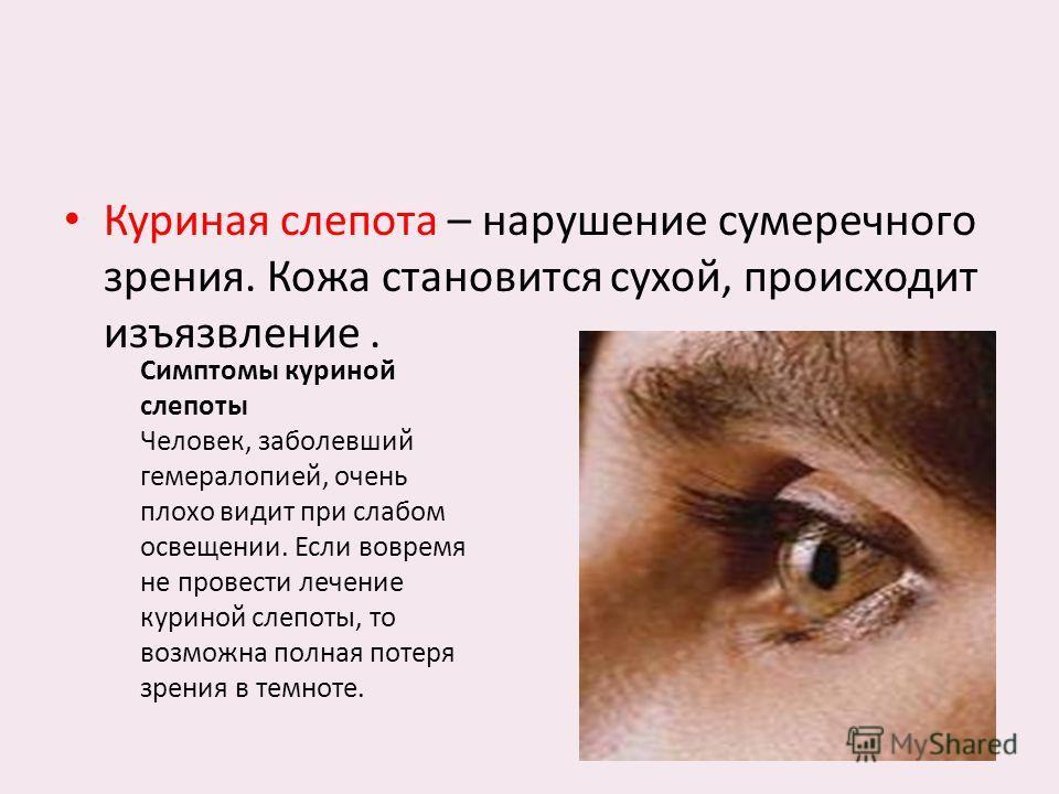 Куриная слепота – нарушение сумеречного зрения. Кожа становится сухой, происходит изъязвление. Симптомы куриной слепоты Человек, заболевший гемералопией, очень плохо видит при слабом освещении. Если вовремя не провести лечение куриной слепоты, то воз