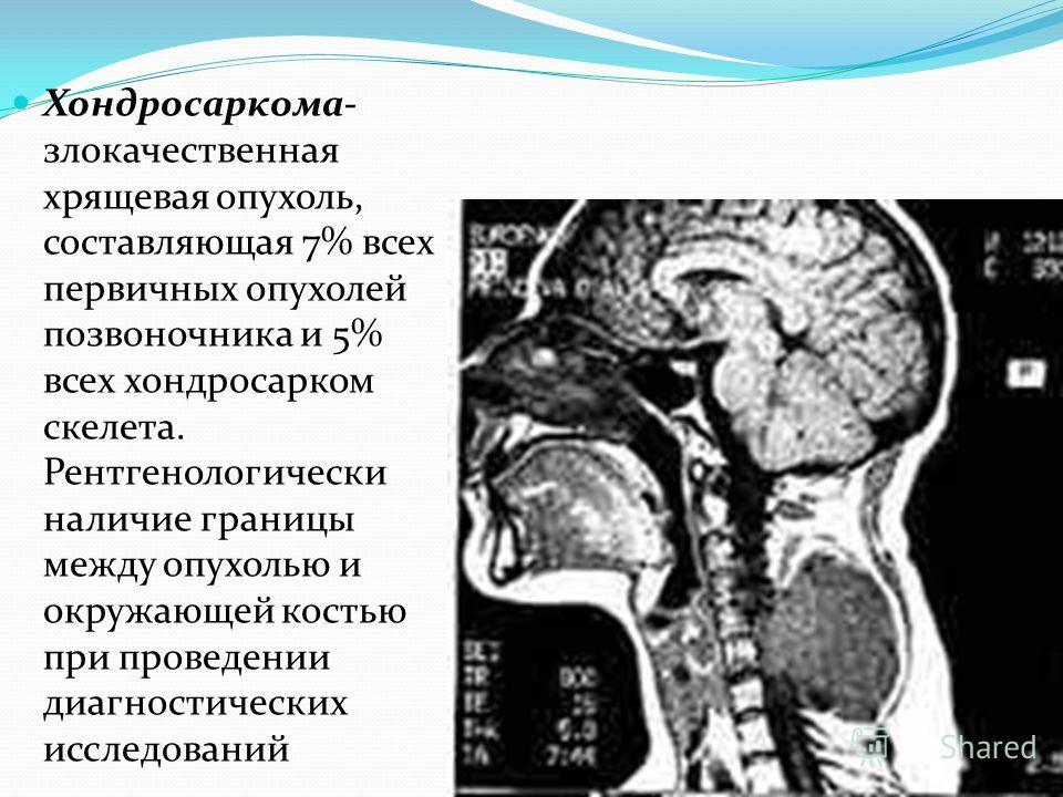 Хондросаркома- злокачественная хрящевая опухоль, составляющая 7% всех первичных опухолей позвоночника и 5% всех хондросарком скелета. Рентгенологически наличие границы между опухолью и окружающей костью при проведении диагностических исследований
