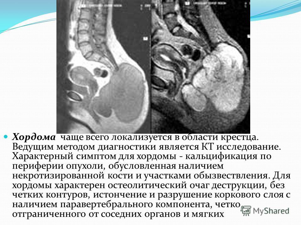Хордома чаще всего локализуется в области крестца. Ведущим методом диагностики является КТ исследование. Характерный симптом для хордомы - кальцификация по периферии опухоли, обусловленная наличием некротизированной кости и участками обызвествления.