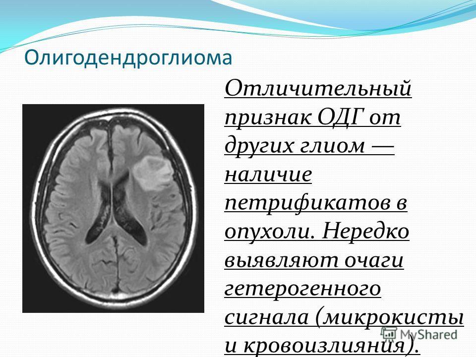 Олигодендроглиома Отличительный признак ОДГ от других глиом наличие петрификатов в опухоли. Нередко выявляют очаги гетерогенного сигнала (микрокисты и кровоизлияния).