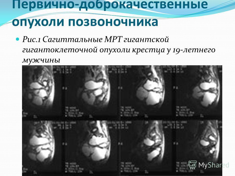 Первично-доброкачественные опухоли позвоночника Рис.1 Сагиттальные МРТ гигантской гигантоклеточной опухоли крестца у 19-летнего мужчины