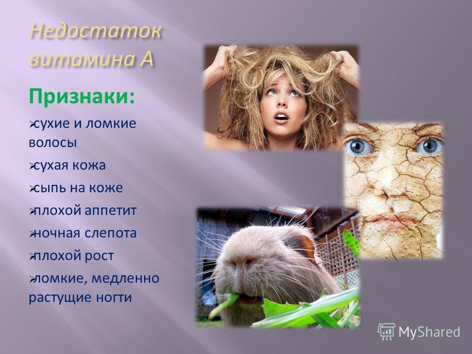 Недостаток витамина А Признаки: сухие и ломкие волосы сухая кожа сыпь на коже плохой аппетит ночная слепота плохой рост ломкие, медленно растущие ногти