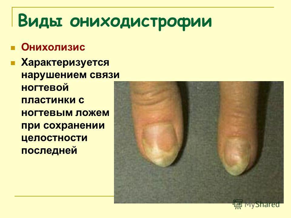 Виды ониходистрофии Онихолизис Характеризуется нарушением связи ногтевой пластинки с ногтевым ложем при сохранении целостности последней