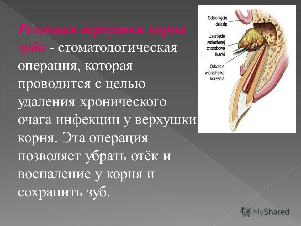 Резекция верхушки корня зуба - стоматологическая операция, которая проводится с целью удаления хронического очага инфекции у верхушки корня. Эта операция позволяет убрать отёк и воспаление у корня и сохранить зуб.