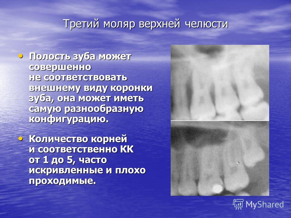 Третий моляр верхней челюсти Полость зуба может совершенно не соответствовать внешнему виду коронки зуба, она может иметь самую разнообразную конфигурацию. Полость зуба может совершенно не соответствовать внешнему виду коронки зуба, она может иметь с