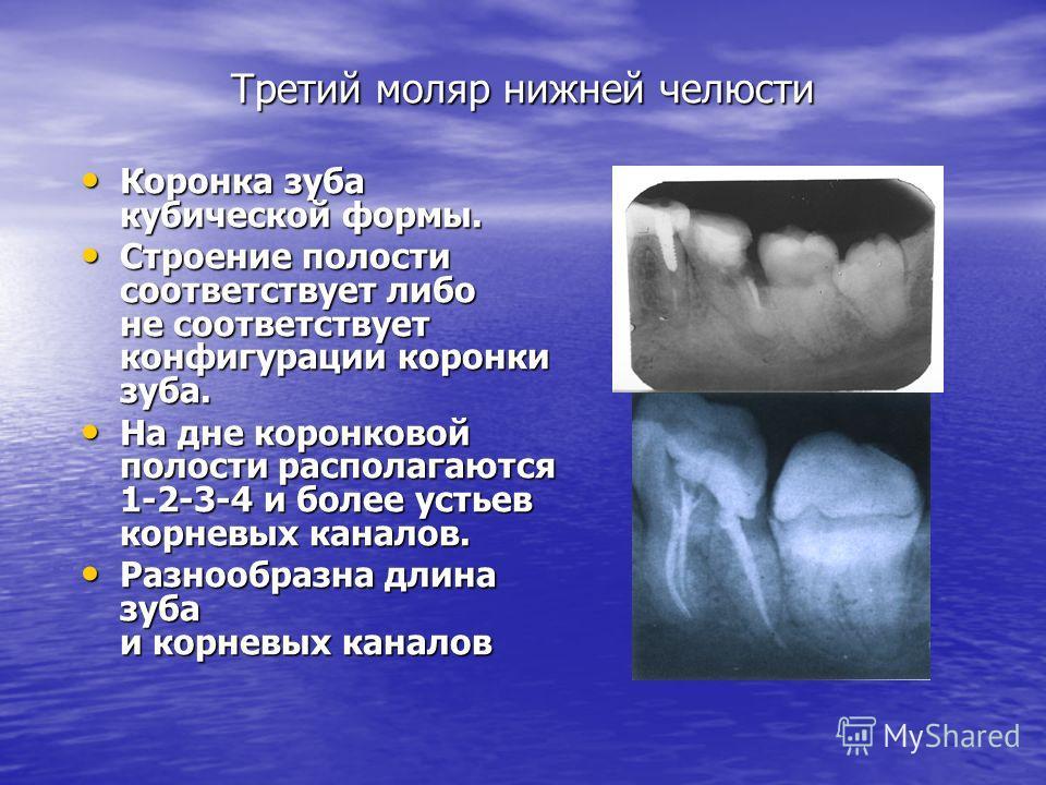 Третий моляр нижней челюсти Коронка зуба кубической формы. Коронка зуба кубической формы. Строение полости соответствует либо не соответствует конфигурации коронки зуба. Строение полости соответствует либо не соответствует конфигурации коронки зуба.